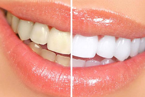 Zaara Dental Clinic in Madurai, Dental Clinic in Madurai, Dental Hospital in Madurai, Dentist Madurai, Dental Hospital in Madurai, Dentist in Madurai, Best Dentist in Madurai, Teeth Clip Treatment, Tooth Pain Treatment in Madurai, Dental Clinic in Madurai, Teeth Clinic in Madurai, Tooth Hospital in Madurai, Top Dentist in Madurai, Tooth Clip Treatment in Madurai, Tooth Cleaning in Madurai,Teeth Removal in Madurai, Top 10 Dental in Madurai, Top 10 Dentist in Madurai, Best Dental Clinic in Madurai